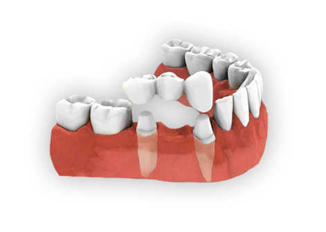 Crowns and Bridges | Pingree Smile Center